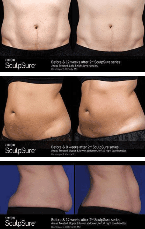sculpsure before after